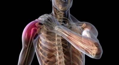 Плексит плечевого сустава как долго длится лечение форум